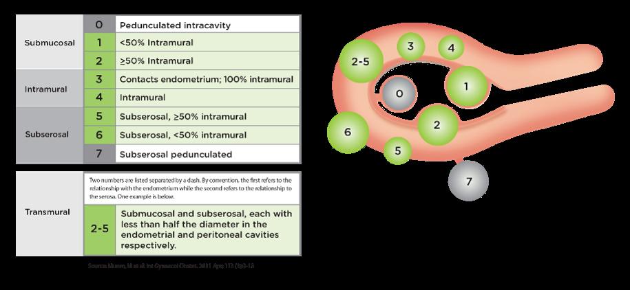 FIGO Classification